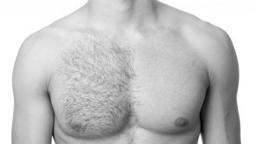 طرق إزالة الشعر الزائد للرجال
